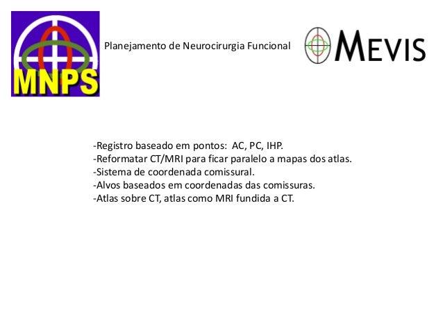 Planejamento de Neurocirurgia Funcional  -Registro baseado em pontos: AC, PC, IHP.  -Reformatar CT/MRI para ficar paralelo...