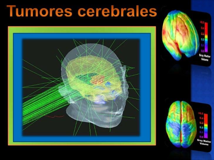 Tumorescerebrales<br />