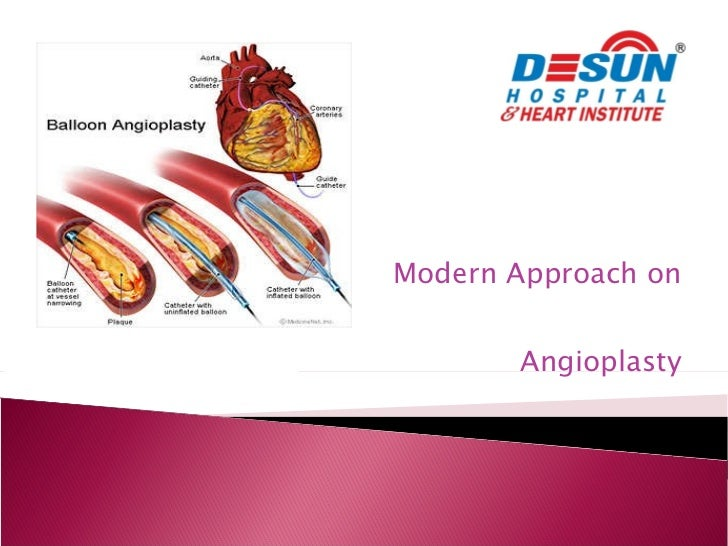 Modern Approach on  Angioplasty