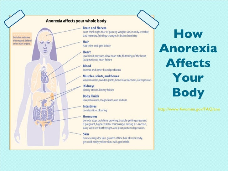 complications of anorexia and bulimia