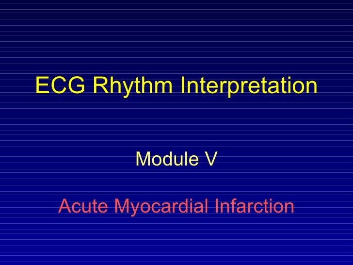 ECG Rhythm Interpretation Module V Acute Myocardial Infarction