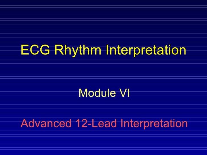 ECG Rhythm Interpretation Module VI Advanced 12-Lead Interpretation