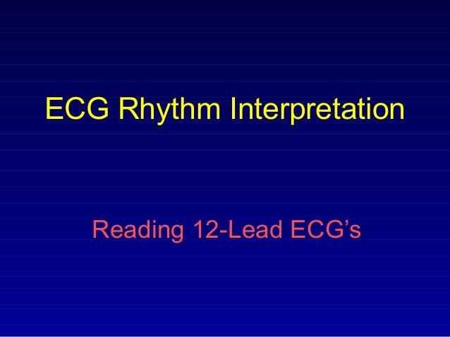 ECG Rhythm Interpretation Reading 12-Lead ECG's