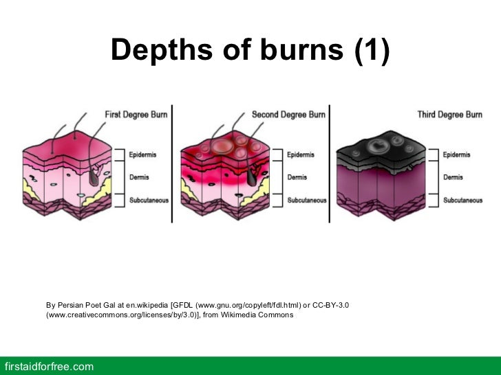 Depths of burns (1) firstaidforfree.com By Persian Poet Gal at en.wikipedia [GFDL (www.gnu.org/copyleft/fdl.html) or CC-BY...