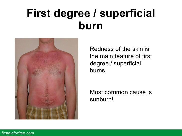 First degree / superficial burn firstaidforfree.com Redness of the skin is the main feature of first degree / superficial ...