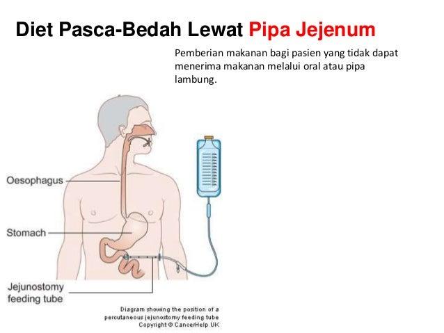 Gambaran Status Gizi Pasien PRA Dan Pascabedah Di RS. Dr. Sardjito, YOGYAKARTA