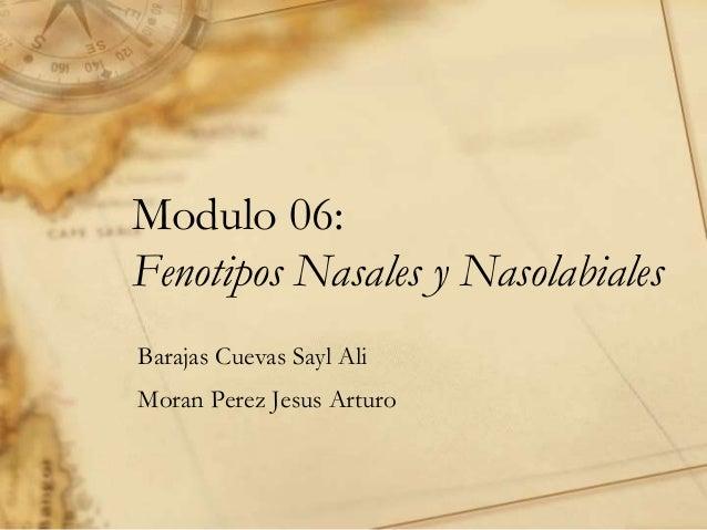 Modulo 06: Fenotipos Nasales y Nasolabiales Barajas Cuevas Sayl Ali Moran Perez Jesus Arturo