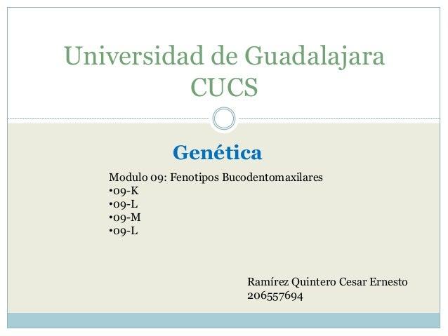 Universidad de Guadalajara CUCS Genética Modulo 09: Fenotipos Bucodentomaxilares •09-K •09-L •09-M •09-L  Ramírez Quintero...