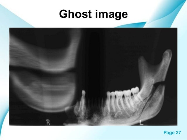 Panorama x ray ghost image powerpoint templates page 27 pronofoot35fo Images