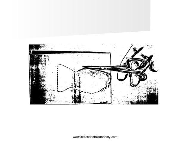 Moisture control & soft tissue manipulation / fixed
