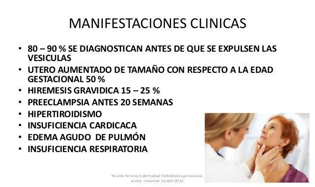MANIFESTACIONES CLINICAS • 80 – 90 % SE DIAGNOSTICAN ANTES DE QUE SE EXPULSEN LAS VESICULAS • UTERO AUMENTADO DE TAMAÑO CO...