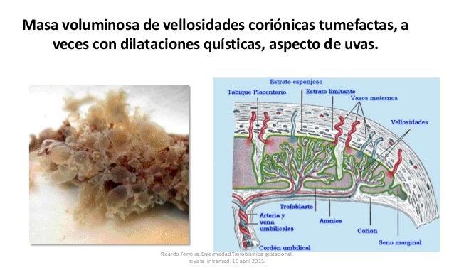 Masa voluminosa de vellosidades coriónicas tumefactas, a veces con dilataciones quísticas, aspecto de uvas. Ricardo Ferrei...