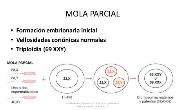MOLA PARCIAL • Formación embrionaria inicial • Vellosidades coriónicas normales • Triploidia (69 XXY) Ricardo Ferreira.Enf...