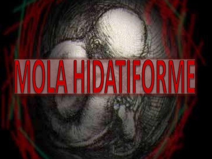 A mola hidatiforme é um tumorbenigno que se desenvolve de tecidoplacentário em fases precoces de umagravidez, em que o emb...