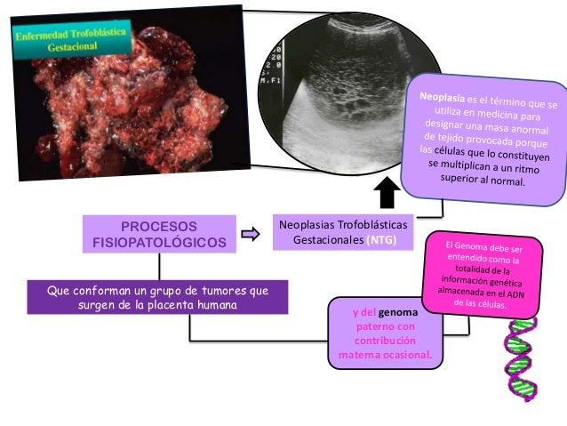 PROCESOS FISIOPATOLÓGICOS Neoplasias Trofoblásticas Gestacionales (NTG) Que conforman un grupo de tumores que surgen de la...