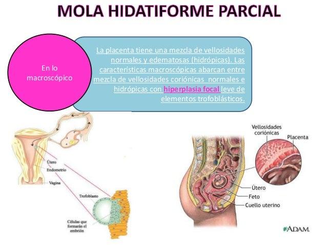 SE PRESENTAN FESTONES DE VELLOSIDADES HIDRÓPICAS, CON INCLUSIONES TROFOBLÁSTICAS EN EL ESTROMA. Los vasos fetales se aprec...