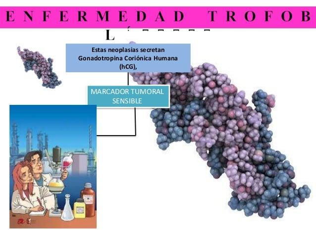 Estas neoplasias secretan Gonadotropina Coriónica Humana (hCG), MARCADOR TUMORAL SENSIBLE