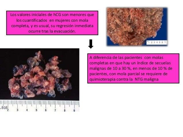No se observan vasos fetales en el estroma de las vellosidades, y si proliferan de citotrofoblasto y sincitiotrofoblasto. ...