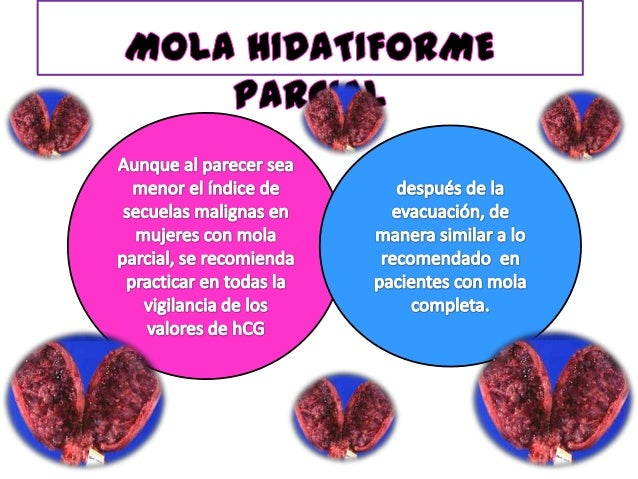 Fecundación de un óvulo anucleado por un espermatozoide haploide que se reduplica, pese a que en unos cuantos casos es con...