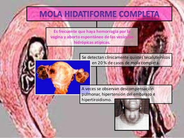 MOLA INVASIVA (CORIOADENOMA DESTRUENS) . También son posibles la invasión vascular directa y metástasis. las metastasis so...