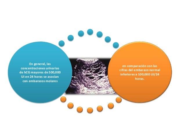 En general, las concentraciones urinarias de hCG mayores de 500,000 UI en 24 horas se asocian con embarazos molares en com...