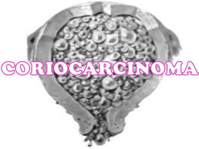 Ultrasonogr afía pélvica TRATAMIENTO Una vez confirmado el diagnostico de embarazo molar el método de elección es el legra...