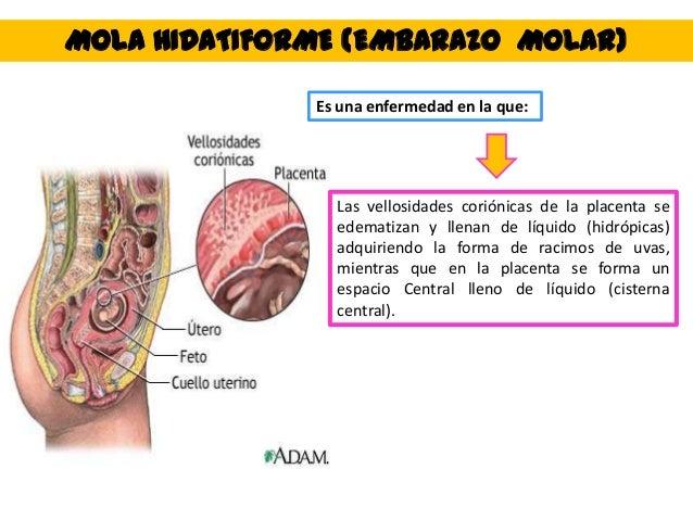 MOLA HIDATIFORME (EMBARAZO MOLAR) Es una enfermedad en la que: Las vellosidades coriónicas de la placenta se edematizan y ...