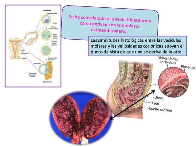 Las similitudes histológicas entre las vesículas molares y las vellosidades coriónicas apoyan el punto de vista de que una...