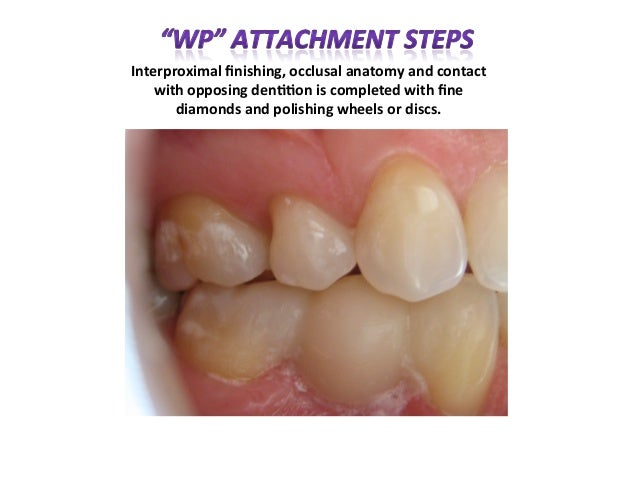 """Carlson Bridge® """"Winged Pontic"""" Tooth Replacement Systems"""
