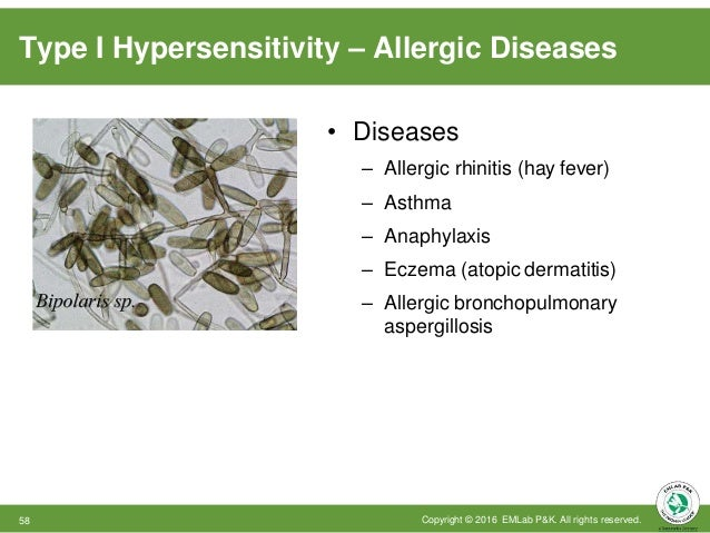 Type I Hypersensitivity – Allergic Diseases • Diseases – Allergic rhinitis (hay fever) – Asthma – Anaphylaxis – Eczema (at...