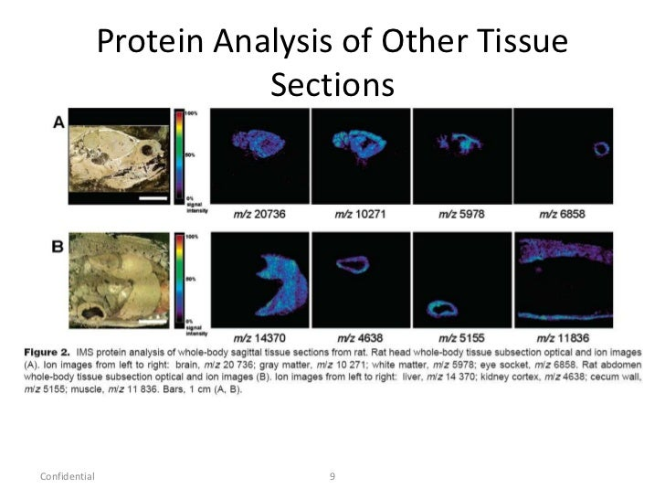 an analysis of cancer in the tissue of the body Our objective was to evaluate clinically accessible methods to achieve practical and precise measures of body composition in cancer patients dual regional analysis of fat and fat-free tissue at the 3rd lumbar vertebra with either dxa or ct applied physiology, nutrition, and.