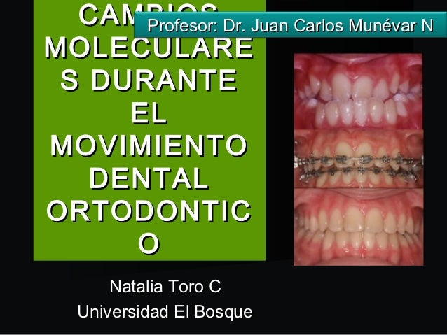 CAMBIOS Dr. Juan Carlos Munévar N      Profesor:MOLECULARE S DURANTE     ELMOVIMIENTO   DENTALORTODONTIC     O      Natali...
