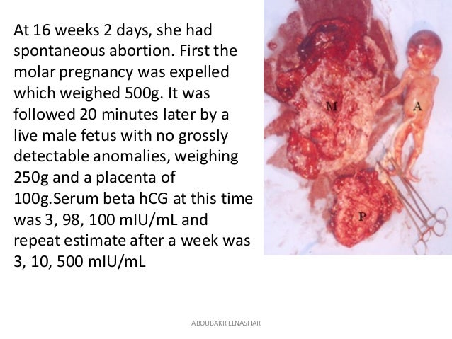 How to manage Partial or complete mole in one of twin pregnancy?