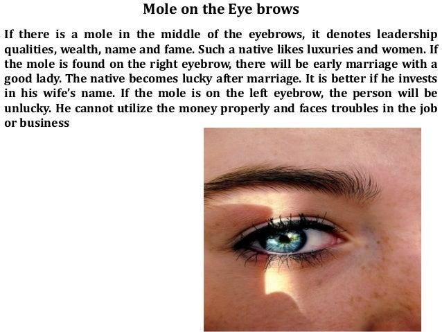 Mole under eye meaning