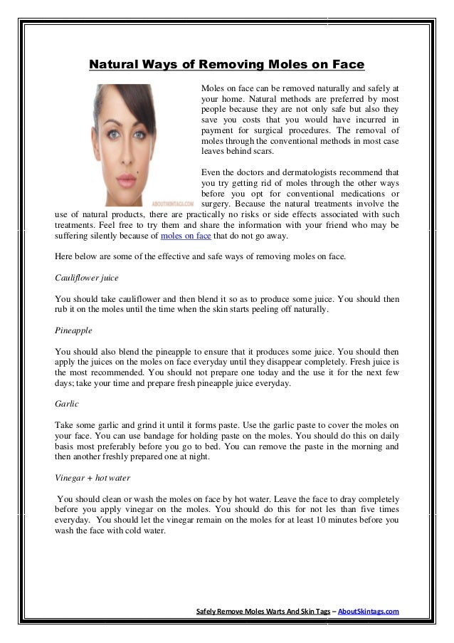 Natural Ways of Removing Moles on Face                                       Moles on face can be removed naturally and sa...