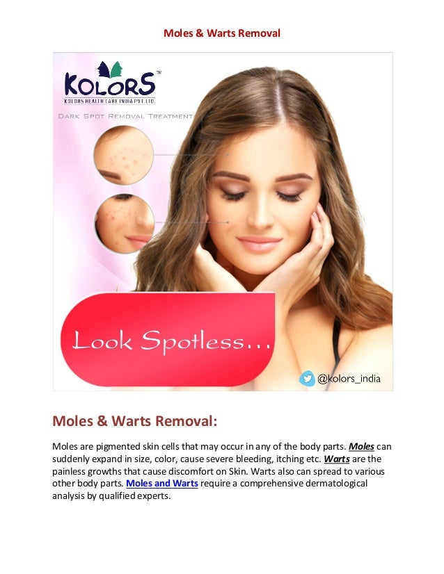 Wart removal cost | mole removal in Hyderabad