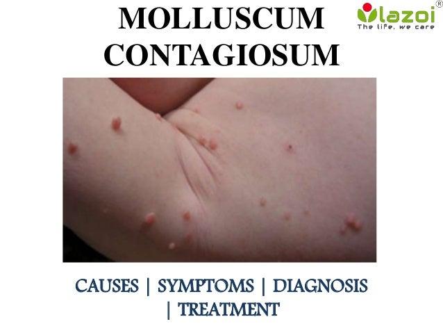 molluscum contagiosum causes symptoms and treatment