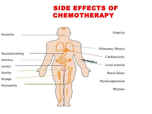 Image result for image of chemotherapy toxicity