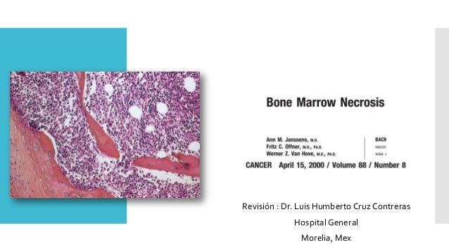 Revisión : Dr. Luis Humberto Cruz Contreras Hospital General Morelia, Mex