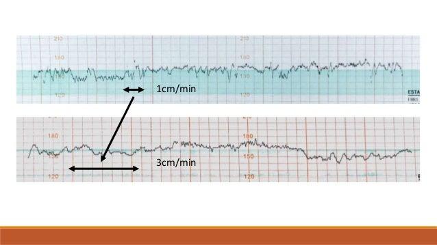 CONCEPTOS BÁSICOS Actividad uterina Frecuencia cardiaca fetal basal Variabilidad Ascensos Descensos o desaceleracione...