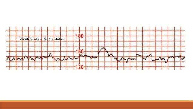ASCENSOS O ACELERACIONES Se define como una elevación brusca de la FCF por encima de la línea basal. Para considerarse ace...