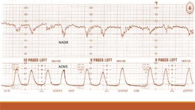 DESACELERACIONES VARIABLES FISIOPATOLOGIA Se debe a la compresión del cordón umbilical entre las partes fetales y las pare...