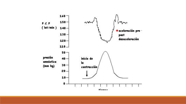 PNS - ¿A que EG se debe realizar la prueba? Lo principal es individualizar cada paciente y realizar el estudio a paciente...