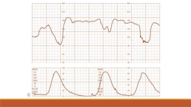 INDICACIONES PARA REALIZAR PNS - ARO CONDICIONES MATERNAS DM - Pregestacional Hipertensión Arterial Crónica Lupus Erite...