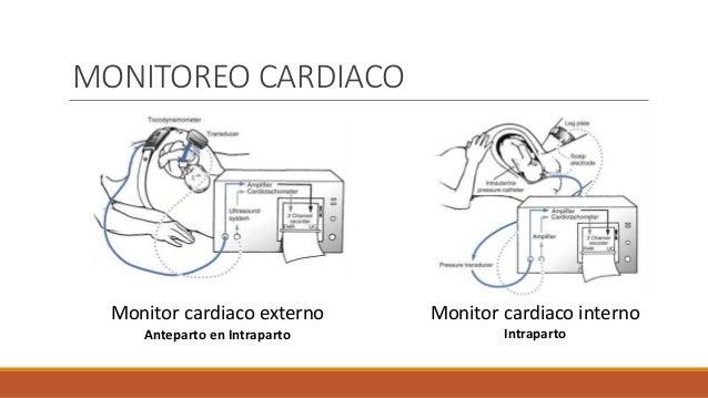 Monitor cardiaco externo Anteparto en Intraparto Monitor cardiaco interno Intraparto MONITOREO CARDIACO