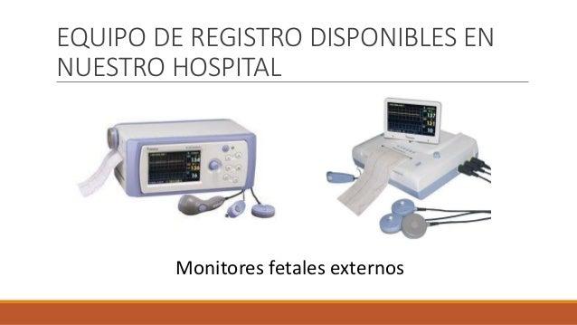 EQUIPO DE REGISTRO DISPONIBLES EN NUESTRO HOSPITAL Monitores fetales externos