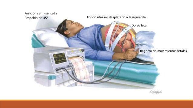 Fondo uterino desplazado a la izquierda Dorso fetal Registro de movimientos fetales Posición semi-sentada Respaldo de 45º