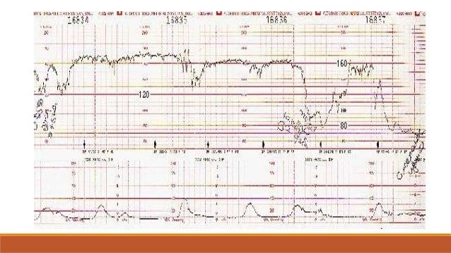 Monitoreo Fetal - 2016