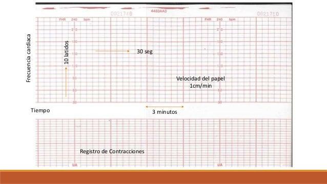 3 minutos 30 seg Frecuenciacardiaca Tiempo 10latidos Registro de Contracciones Velocidad del papel 1cm/min