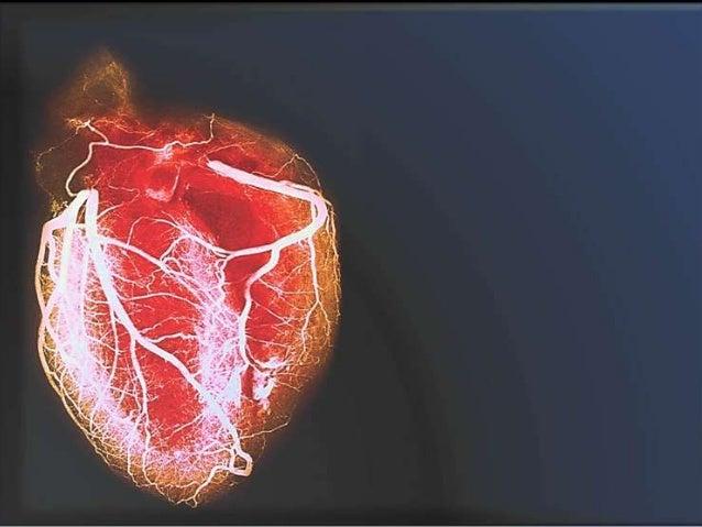 Gasto Cardiaco Frecuencia Cardiaca Volumen Sistólico Pre-Carga Post-Carga Contractilidad